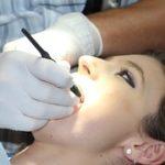 zubni-osetreni-1514692__180